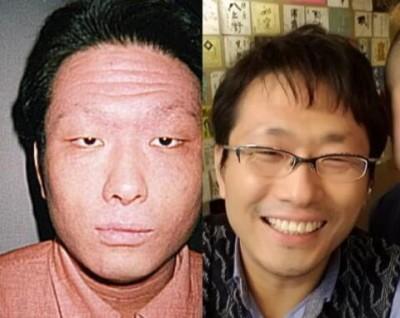 症状期間中と完治後の写真