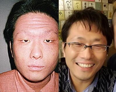 アトピー症状期間中と完治後の写真